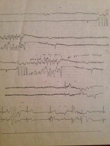 heart flatline
